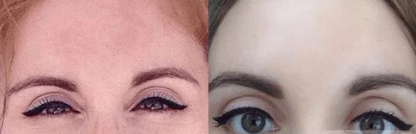 Химический пилинг — фото до и после
