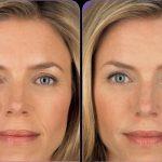 Лицо до и после введения гиалуроновой кислоты