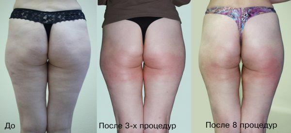 Вакуумный массаж фото до и после