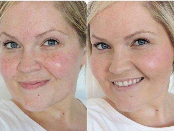 Фото лица до и после применения яичных масок