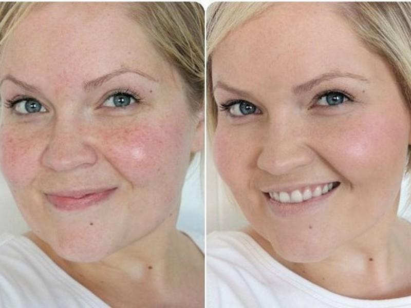 Улучшить цвет лица в домашних условиях
