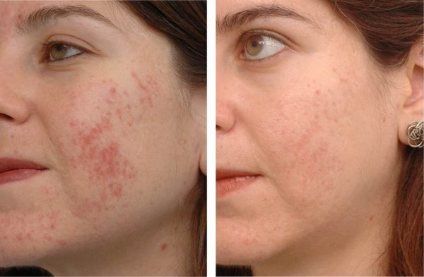Лечение акне маслом розмарина: до и после