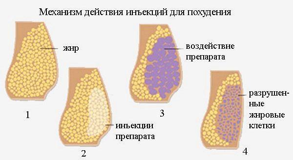Механизм действия антицеллюлитных инъекций