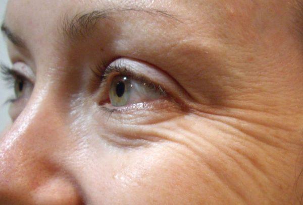 Морщины вокруг глаз у женщины