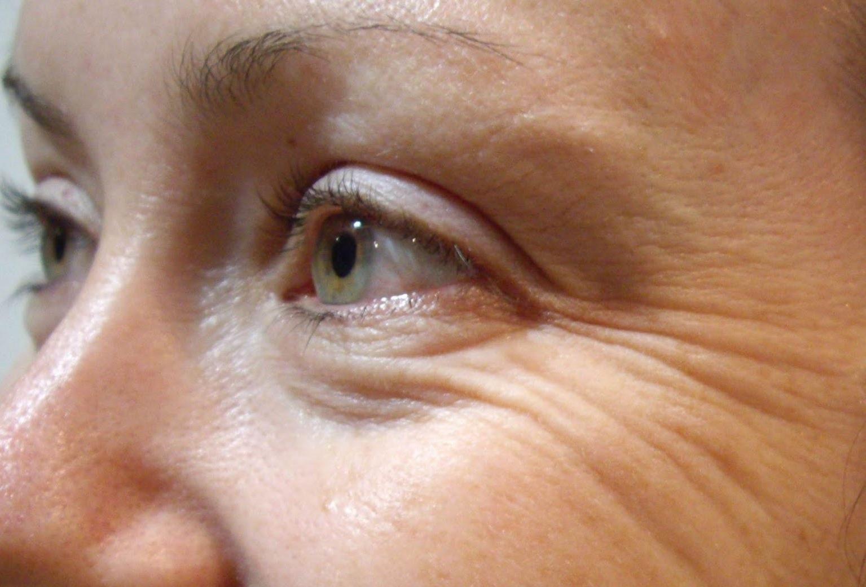 Бороться морщинами вокруг глаз домашних условиях