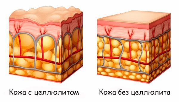 Сравнение кожи с целлюлитом и без