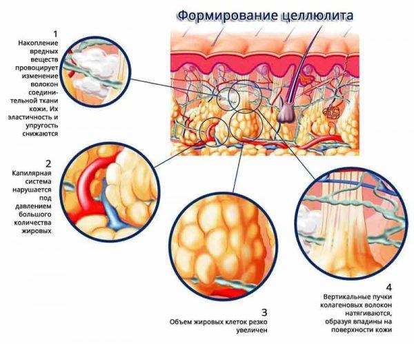 Схема возникновения целлюлита