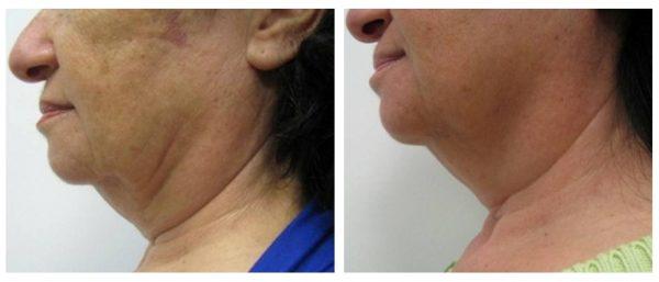 Целлюлит на лице до и после лечения