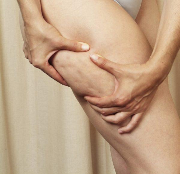 Отёчный целлюлит на ногах
