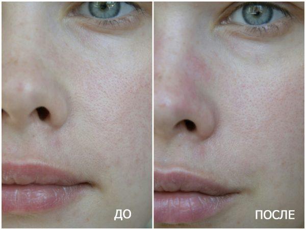 Действие альгинатной маски