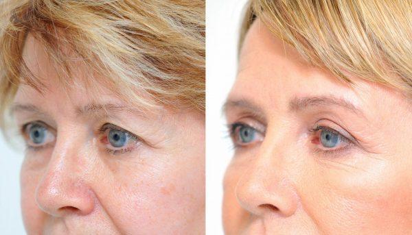 Эффект от блефаропластики: фото до и после