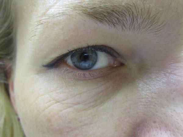морщины вокруг глаз после 35 лет