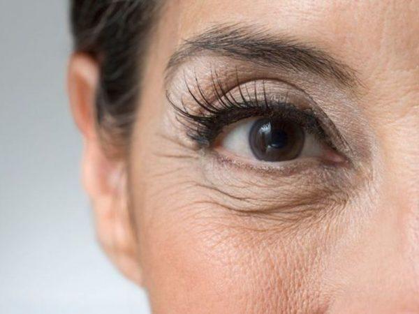 морщины вокруг глаз после сорока лет