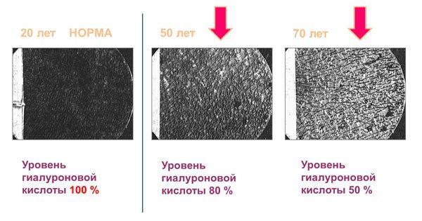 Состояние кожи под микроскопом