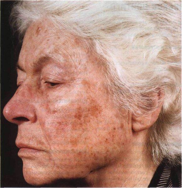 Возрастное лентиго у женщины