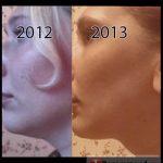 Второй подбородок до и после