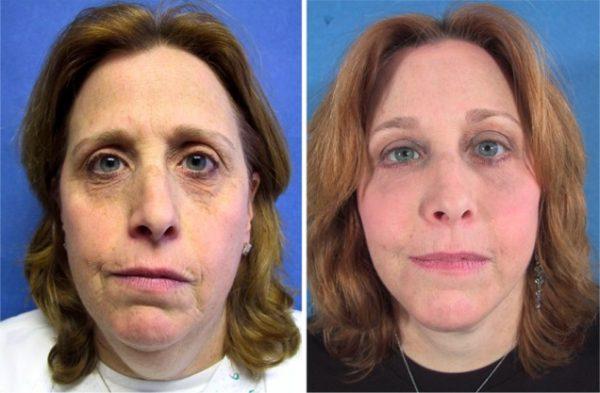 Лицо до и после лифтинга средней трети