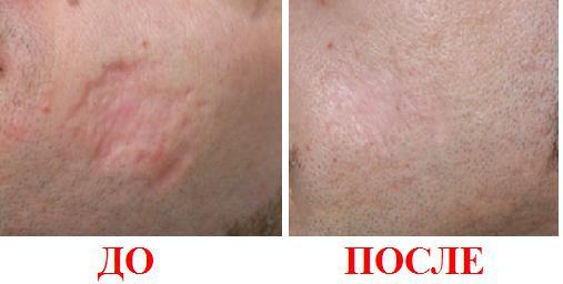 результат удаления неглубокого шрама лазерным методом (фото до и после)