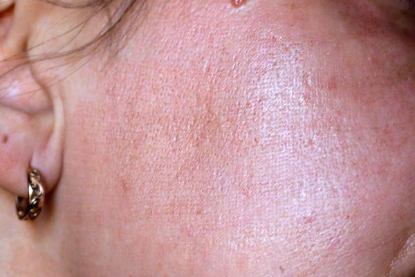 сетка на коже после лазерной шлифовки