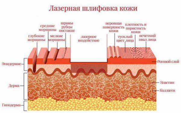 лазерное воздействие на кожу во время шлифовки