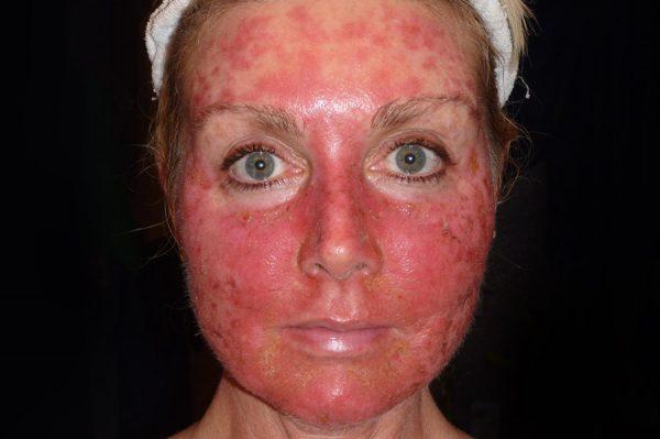 кожа лица на второй день после лазерной шлифовки