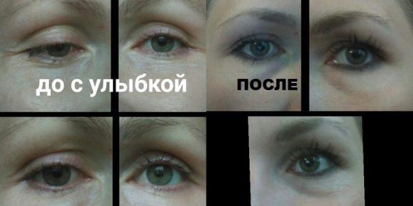 Результат применения маски из хлеба, молока и сливочного масла: фото до и после