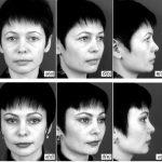 Боковая подтяжка: до и после