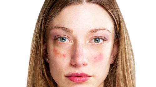 Девушка с гиперемией на лице