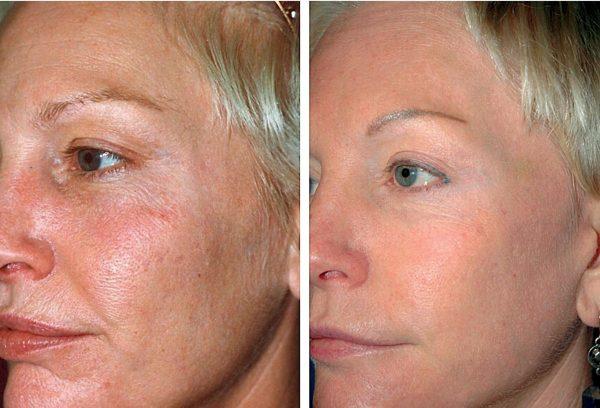 До и после лазерного омоложения
