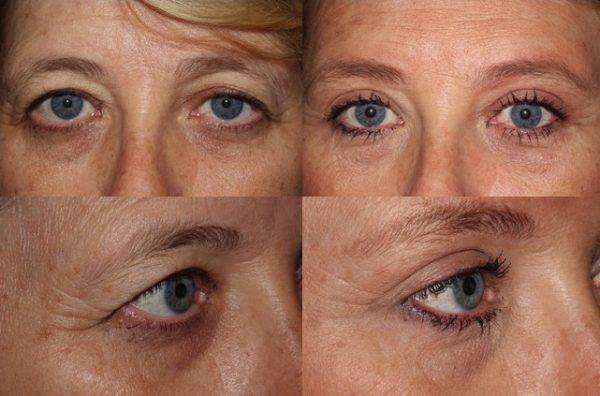 До и после лифтинга верхней трети лица