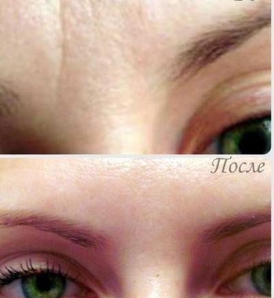 влияние микротоков на морщины: фото до и после