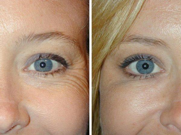 До и после микротоковой терапии вокруг глаз