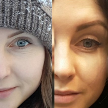 Эффект от ботокса: фото до и после