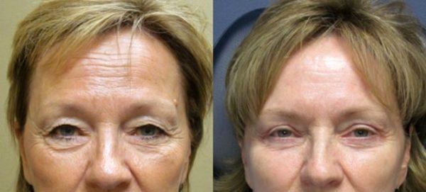 Женщина до и после эндоскопической подтяжки лба и бровей