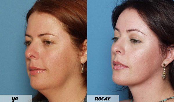 Женщина до и после эндоскопической подтяжки лица