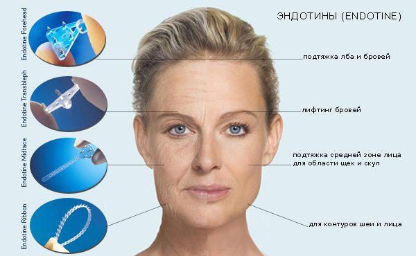 Лицо женщины и пример использования эндотинов