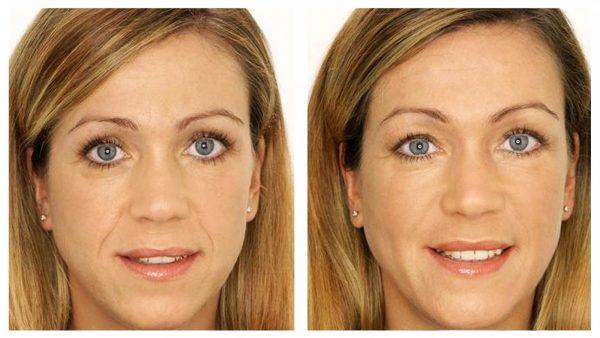 Женщина до и после выполнения упражнений по методу Кэрол Маджио