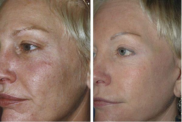 Результат фракционного лазерного омоложения лица