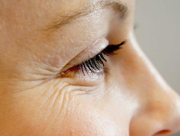 «гусиные лапки» вокруг глаз