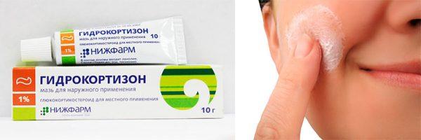 Коллаж: упаковка гидрокортизоновой мази и ее нанесение на лицо