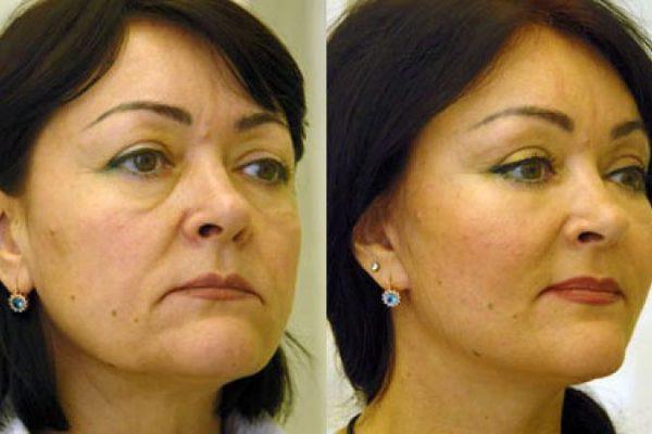 Женщина до и после коррекции средней трети лица
