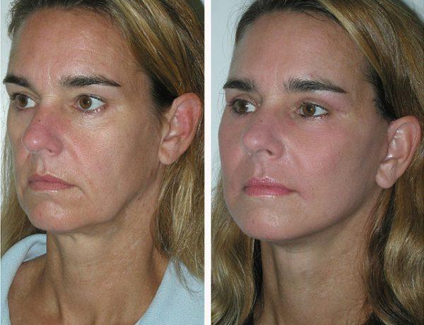 Лицо до и после лифтинга нижней трети