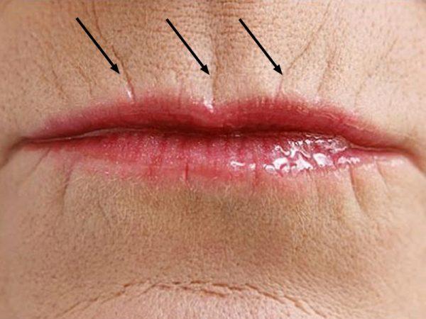 Морщины над верхней губой (кисетные)