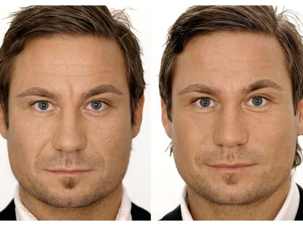 мужчина до и после курса инъекционных методик