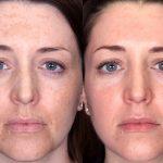Женщина с пигментными пятнамидо и после процедуры фотоомоложения