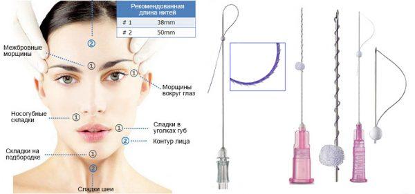 Зоны лица и примеры нитей, применяющихся для нитевого лифтинга