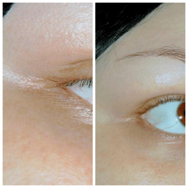 Область вокруг глаз у девушки до и после использования Солкосерила