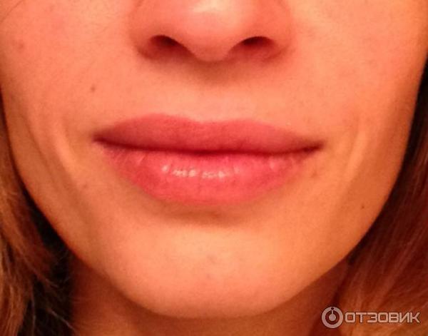 Лицо после процедуры при лёгкой улыбке