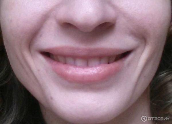 Инъекции Juvederm Ultra 3: фото широкой улыбки после процедуры