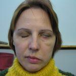 Парез лицевого нерва